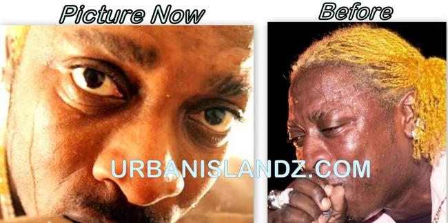 Elephant Man Now Looking Lighter Than Vybz Kartel ... Cake Soap Bleaching Cream
