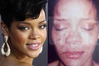 Cops Who Leaked Rihanna Assault Photos Walk Free