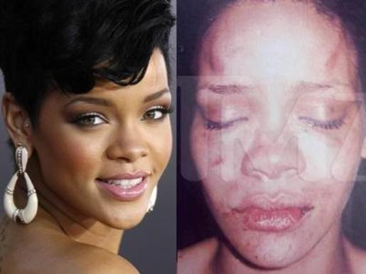 rihanna assault image