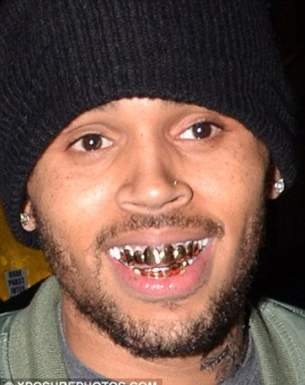 Rihanna Gets Gold Grills To Match Chris Brown S Photo