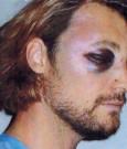 Gabriel Aubry black eye pic