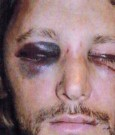 gabriel aubry battered face pics