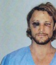 gabriel aubry beaten pics leak