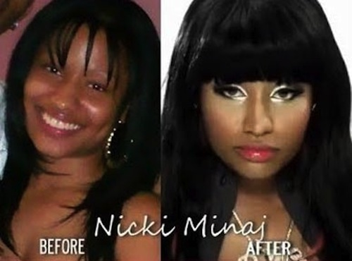 Nicki Minaj nose job