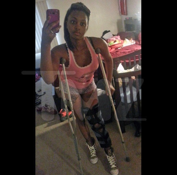 Deanna Gines injury chris brown assault