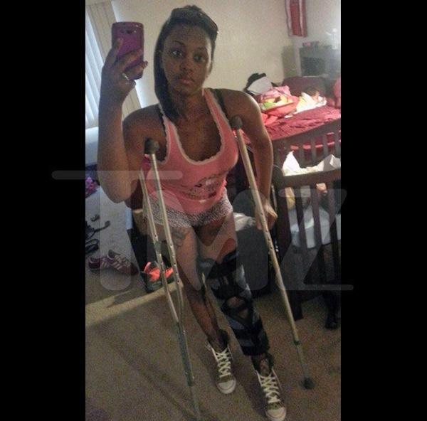 Deanna Gines injury chris brown assault