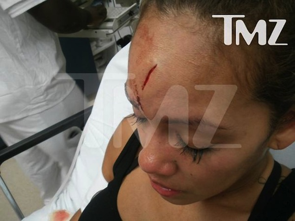 Evelyn Lozada assault photo