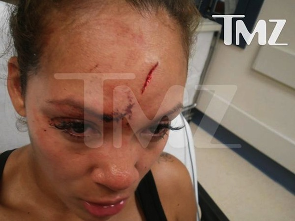 Evelyn Lozada forehead assault photo