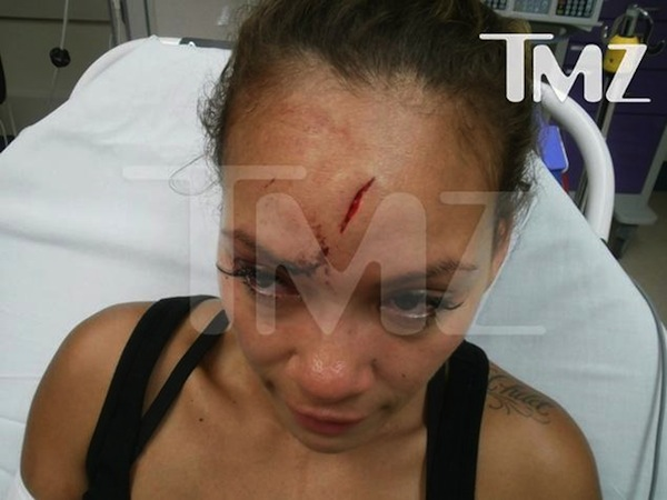 Evelyn Lozada head wound photo
