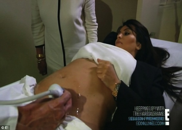 Kim Kardashian in labor