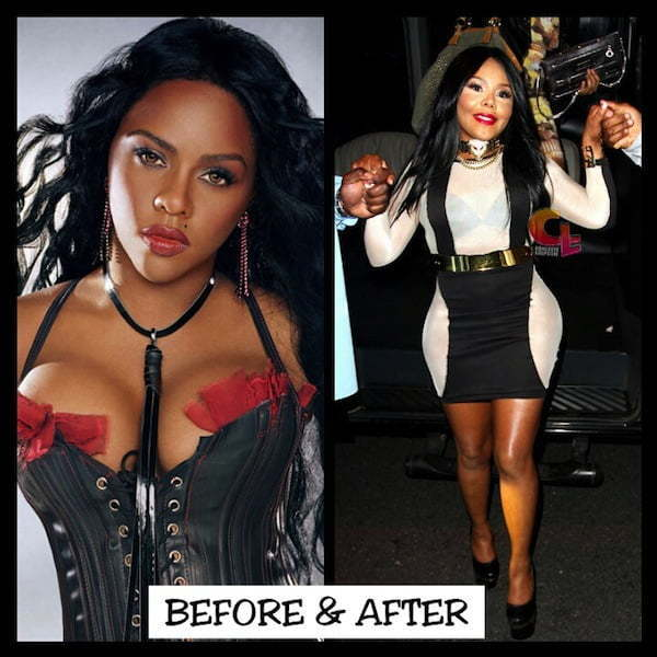 Lil Kim before and after plastic surgery