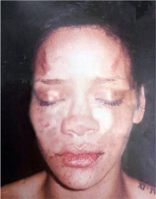 Rihanna battered face