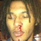 C Brown assault victim