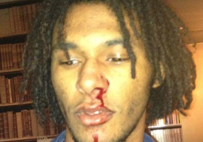C Brown assault victim
