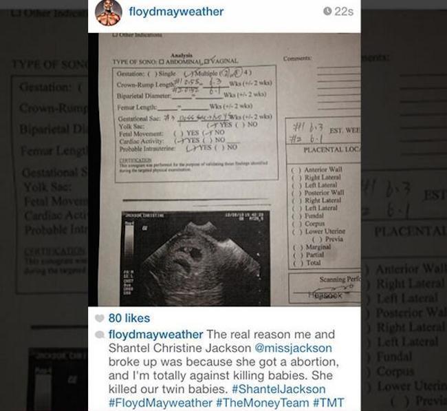 Floyd Mayweather Shantel Jackson aboration doc