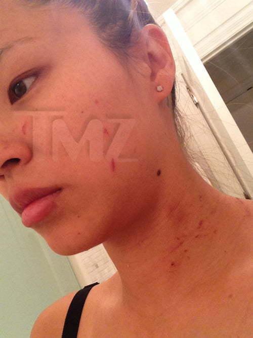 Lydia Nam assault 1