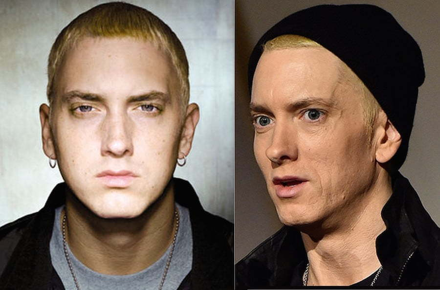 Eminem before and after
