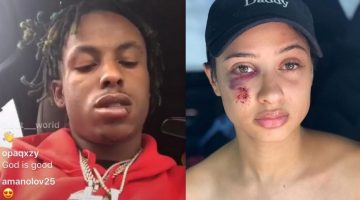 Rich The Kid Out The Hospital Insist Tori Brixx Didn't Set Him Up