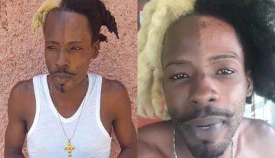 Dancehall artiste SKP bleach face