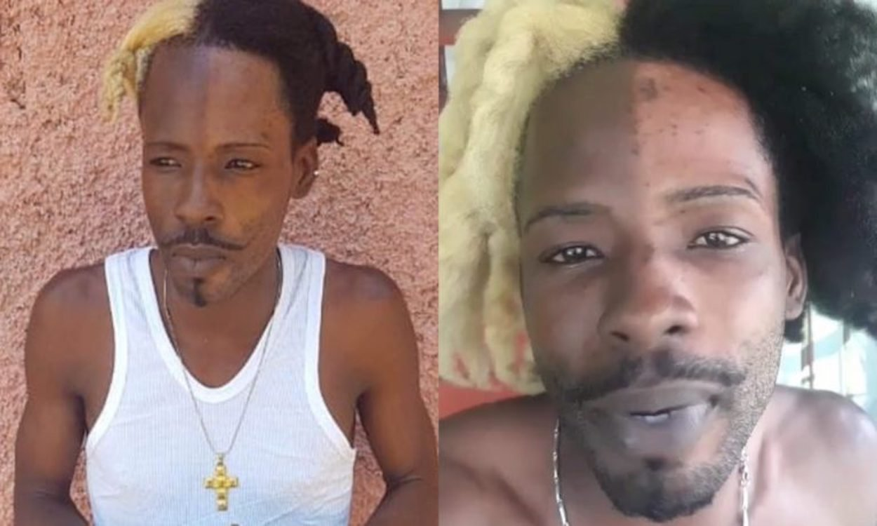 Dancehall artiste SKP bleach face